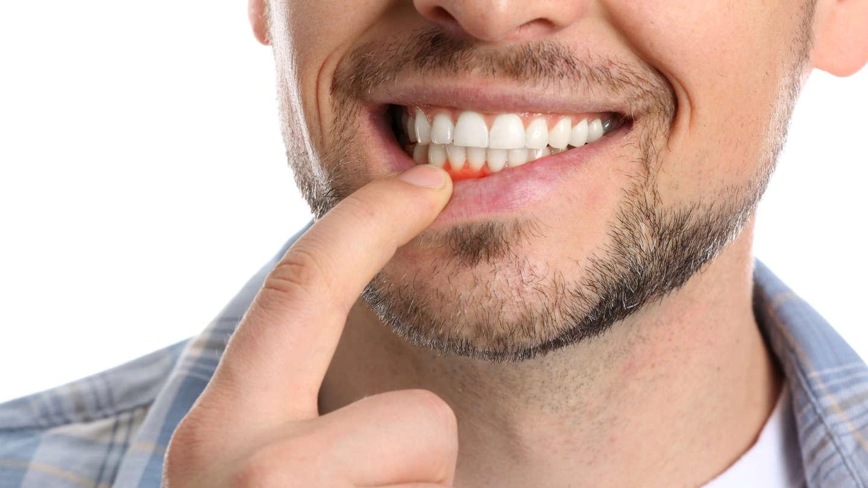 Ασθένεια των ούλων στους άντρες