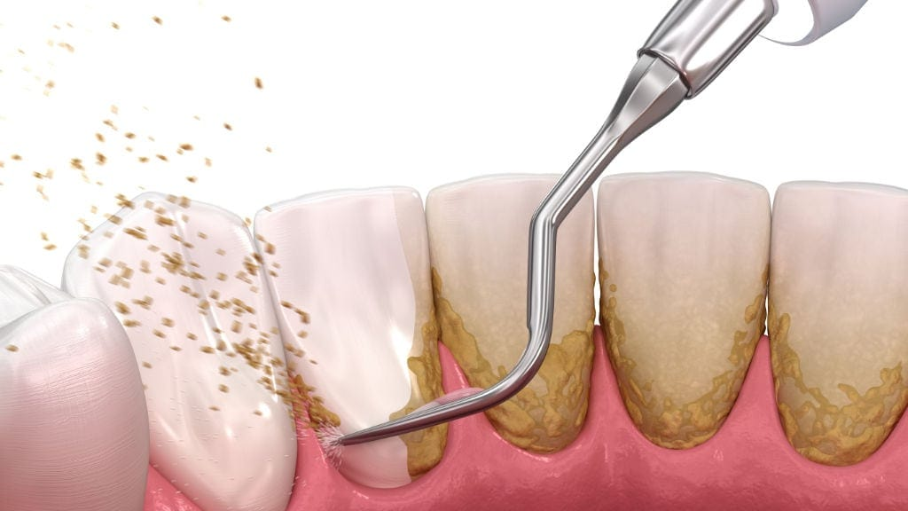 Καθαρισμός δοντιών στον οδοντίατρο: Μέθοδοι και Τιμές