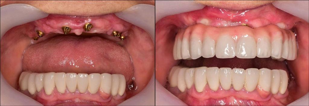 Τοποθέτηση οδοντικών εμφυτευμάτων με την μέθοδο All on 4