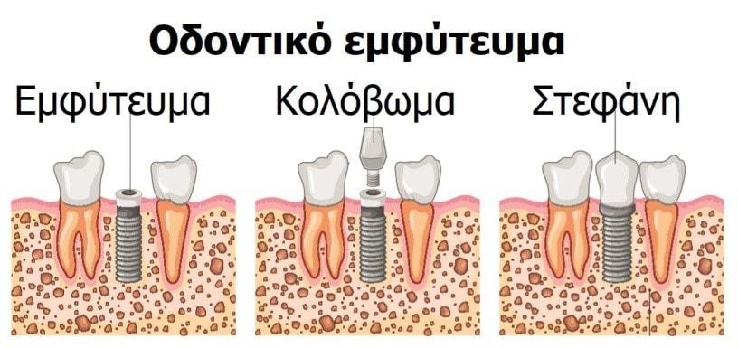 Τι είναι το οδοντικό εμφύτευμα