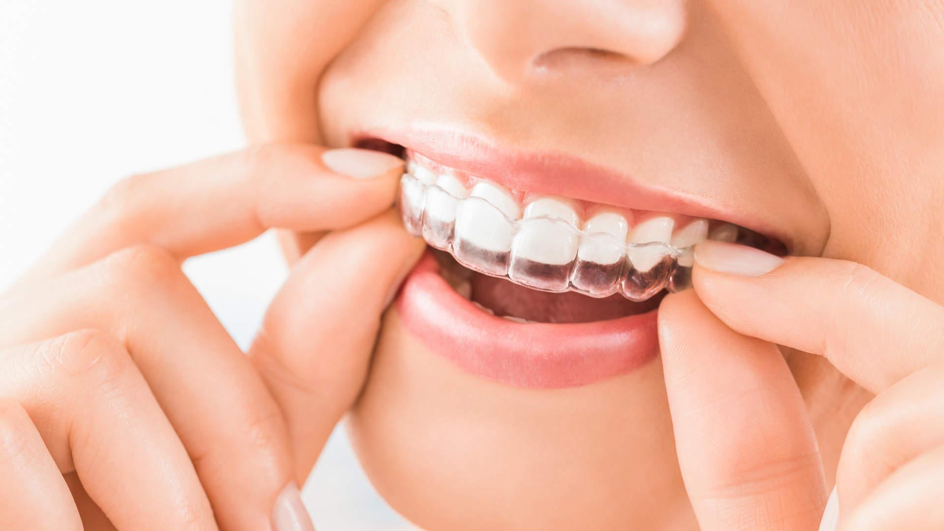 Ορθοδοντικές Θεραπείες | Αdvanced Dental Clinics