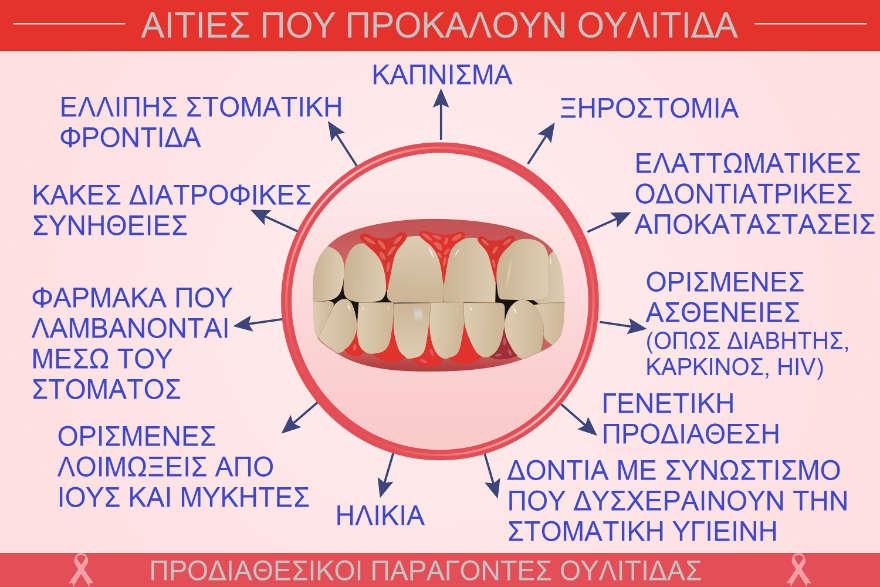 Αιτίες που προκαλούν ουλίτιδα