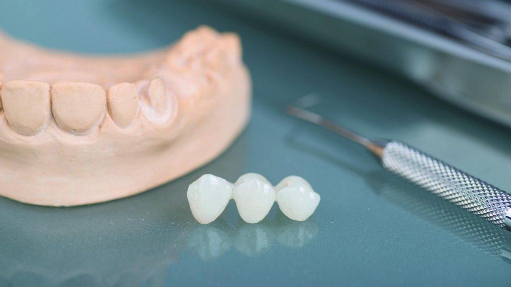 Στεφάνες και γέφυρες δοντιών