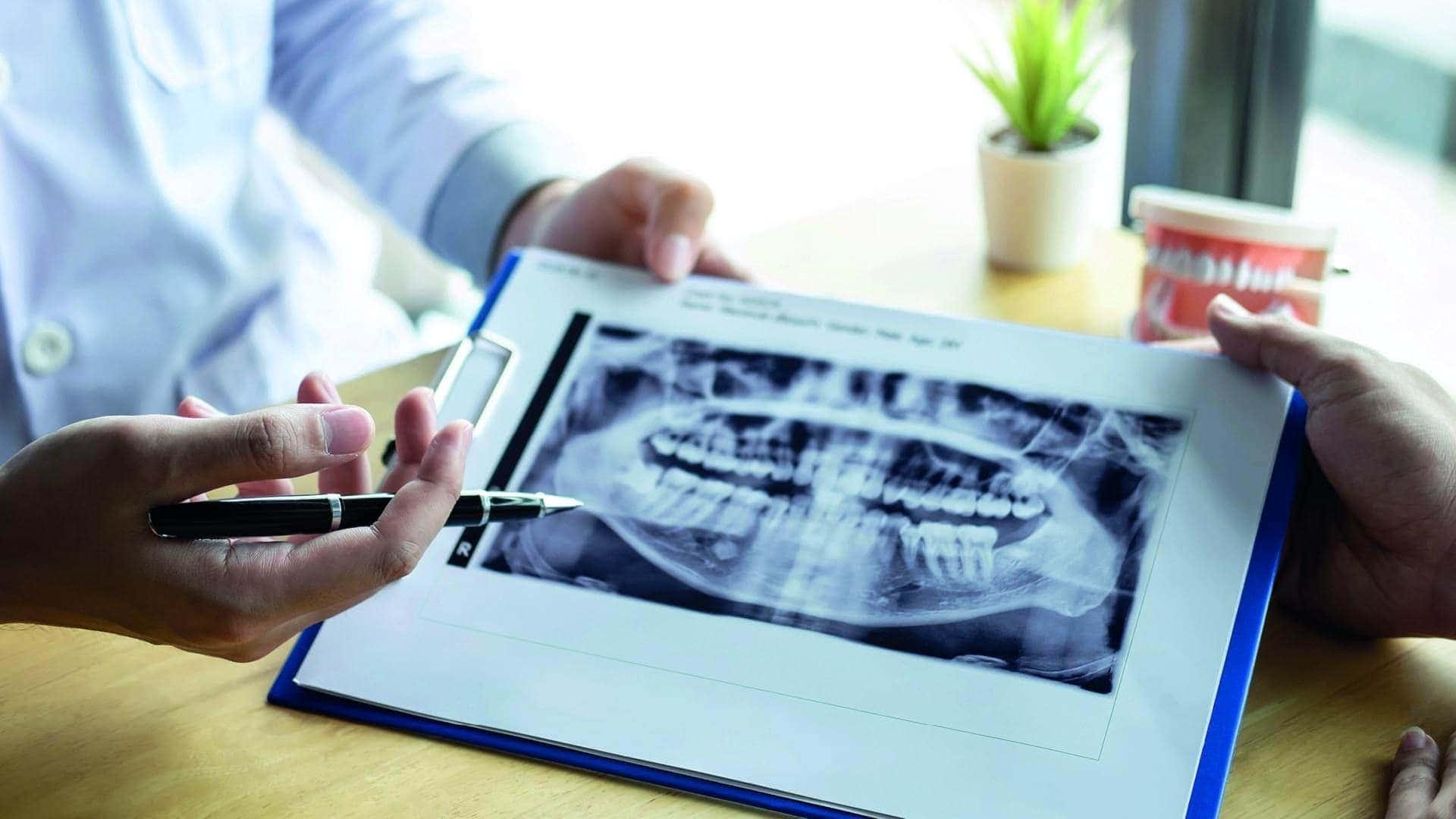 Βρουξισμός: Σφίξιμο και Τρίξιμο Δοντιών Αιτίες Και Θεραπεία